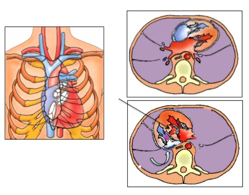 Das Herz im Brustkorb. Der obere Schnitt zeigt ein normales Herz, der untere die Herzposition unseres Kindes von heute Morgen. Der Ventrikel-Septumdefekt ist mit dem geraden schwarzen Pfeil markiert; der blaue gekrümmte Pfeil zeigt den operativen Zugang zu diesem Septumdefekt über den rechten Vorhof an.