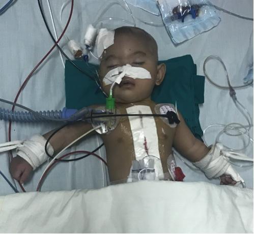 Die letzte Operation. Bald wird das Kind wieder aufwachen.